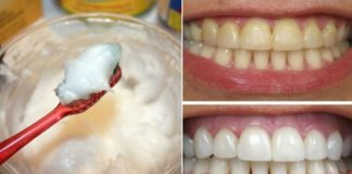 6 Simple Ways to Naturally Whiten Your Teeth at Home,